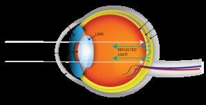 eyeball-eyeshine.png